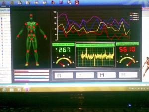 biorezonanta_electromagnetica_analize_tratament_baile_herculane_hotel_international